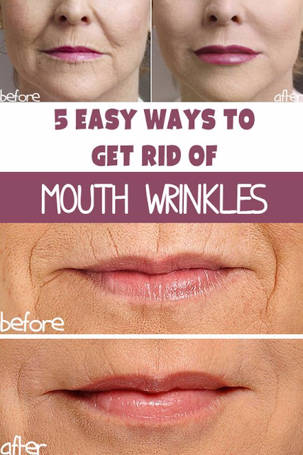 Natural Remedies For Wrinkles Around Mouth