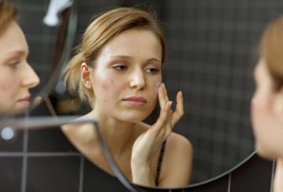 Mengenal Lebih Dekat Penyakit Para Remaja, Jerawat