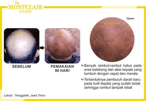Order WA 081.357.118.545   Montclair Hair Serum