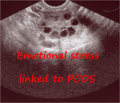 Emotional Stress linked to PCOS