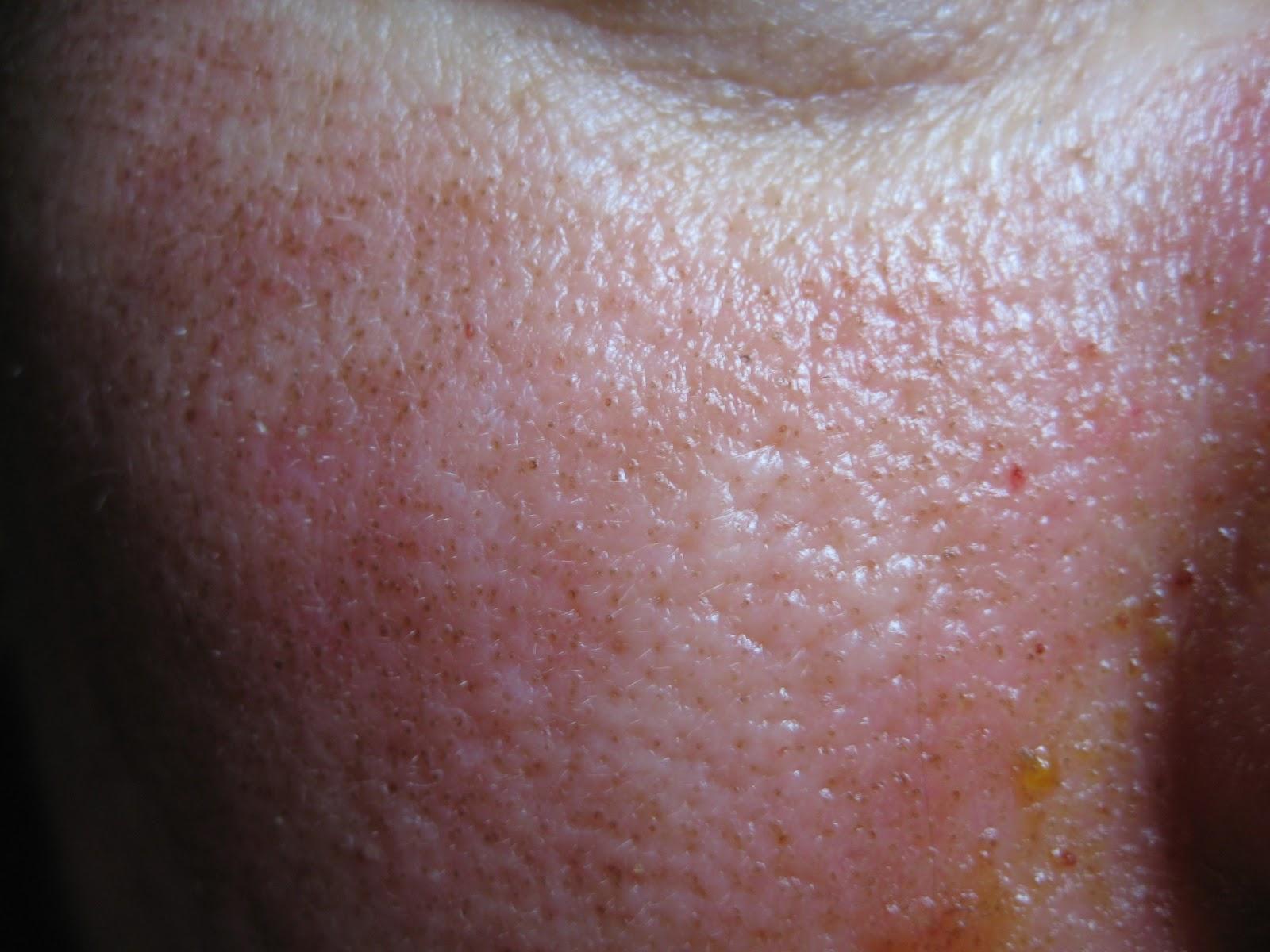 papillomatosis bőr okozza