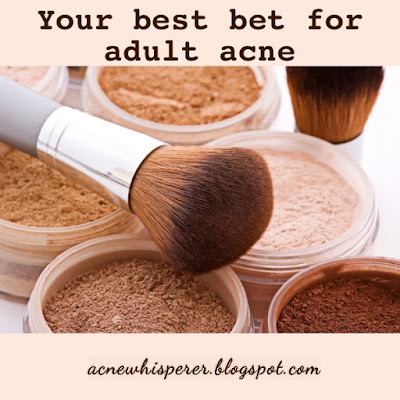 Mineral makeup - your best bet for adult acne prevention.