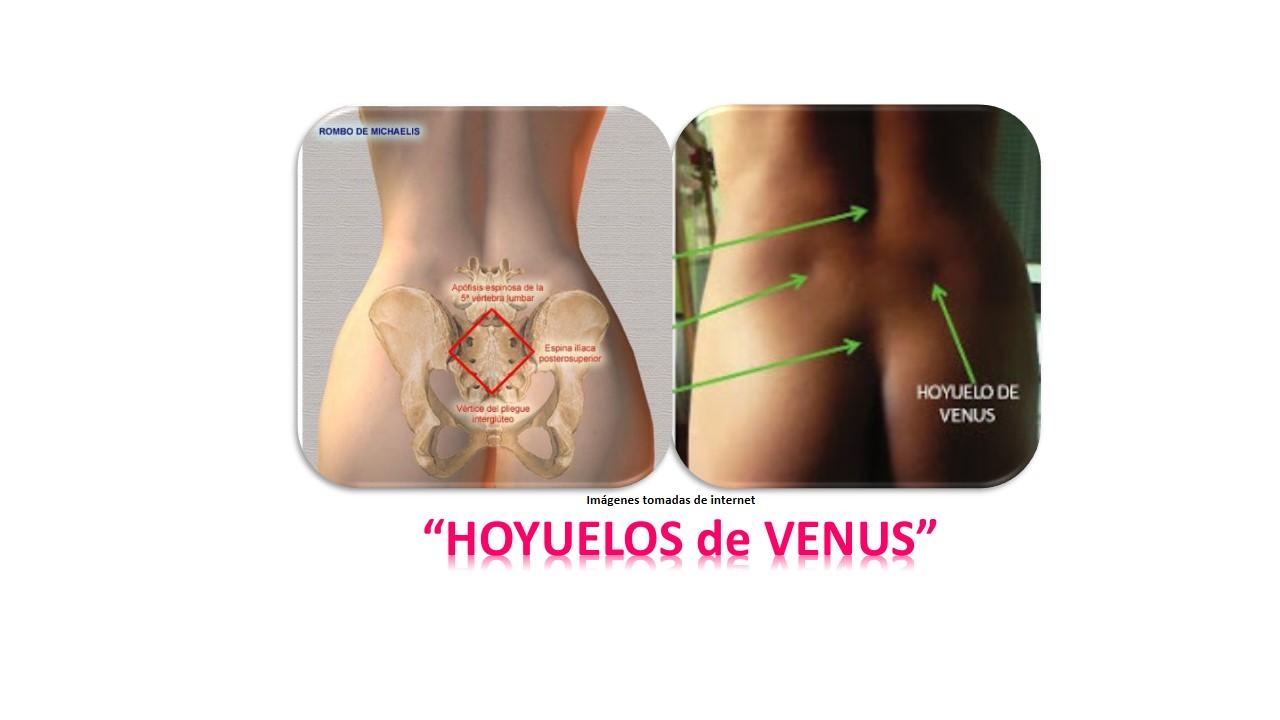 SIN CIRUGÍAS en LÍNEA: HOYUELOS de VENUS o de APOLO…SU IMPORTANCIA ...