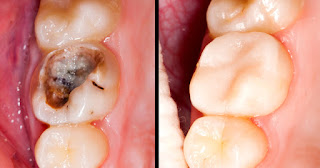 HOW TO HEAL TOOTH CAVITIES/DECAY NATURALLY 2