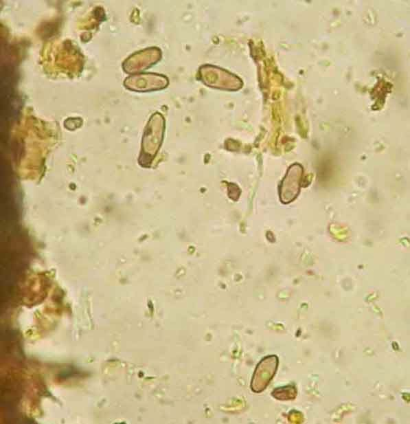 Catinella olivacea ascospores look like tiny feet.