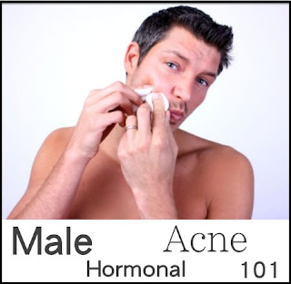 9 Things Men Should Know To Make Pimples Not Easier Appear