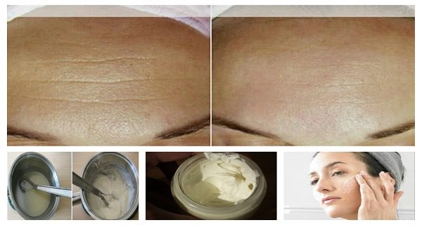 Anti-Aging Homemade Cream to Get Rid of Lines and Wrinkles on Your Face in Less Than Two Weeks