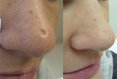Masque visage pour diminuer les points noirs du nez