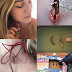 Lady turns her labia into a necklace after being cut off in 'designer vagina' surgery