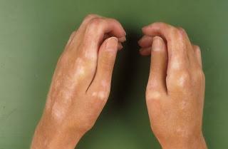 sclerodermie degete