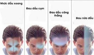 Một số loại thuốc nên dùng khi bị đau đầu
