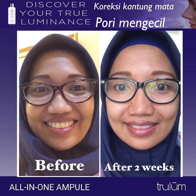 Jual Serum Penghilang Jerawat Trulum Skincare Lima Puluh Kota Pekanbaru