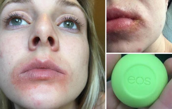 Poursuite contre EOS : réactions cutanées après utilisation des baumes à lèvres