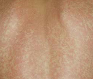 Mono rashes scattered all around the patient's back mono rash pictures
