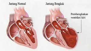 jantung bengkak
