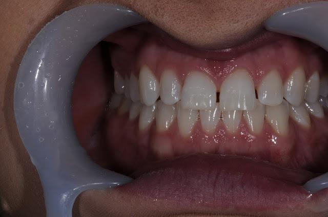 Smile Confidently with Smile Design at Ewan Bramley Dental Care Newcastle