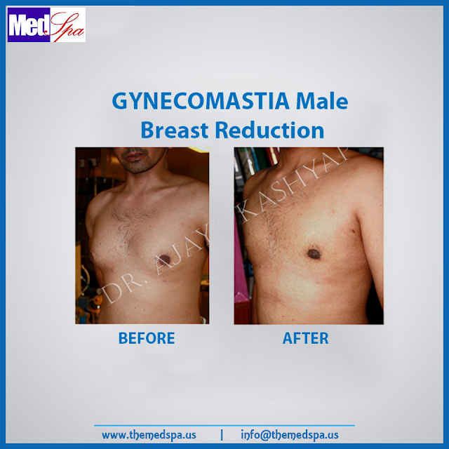 gynecomastia-male-breast-reduction-delhi-india-by-drajayakashyap