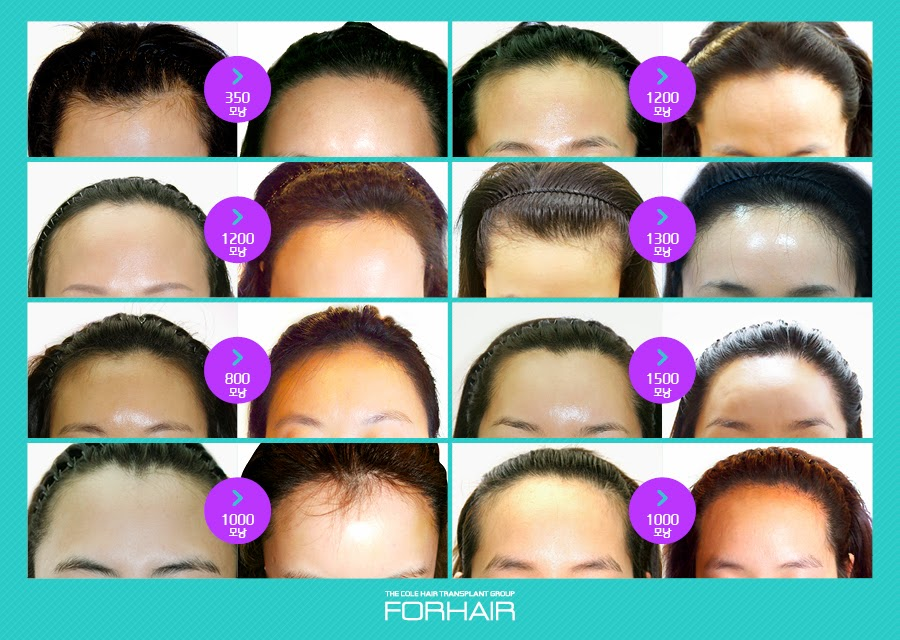 hair loss treatment, forhair hair transplant, hair transplant korea, dr cole hair, hair transplant seoul, hair care korea
