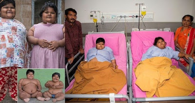 World's Fattest Sisters', Aged 6 And 8 Finally Undergo weight Surgery
