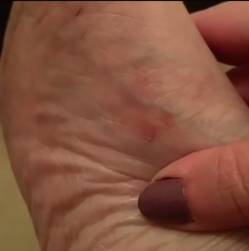 Blisters on my foot
