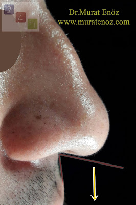 Droopy or Ptotic Nasal Tip