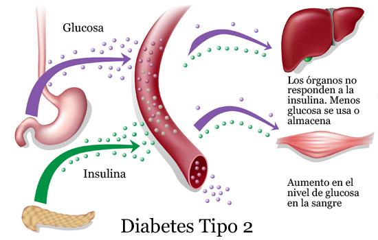 detener la diabetes tipo 2 de insulina