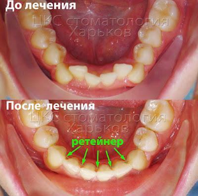 Ортодонтический ретейнер на нижней челюсти
