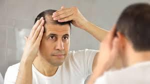خمس خطوات لمنع تساقط الشعر