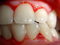 https://steviaven.blogspot.com/2017/11/remedios-caseros-sangrado-encias-dientes-flojos.html