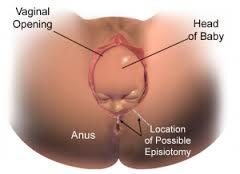 perawatan vagina setelah melahirkan
