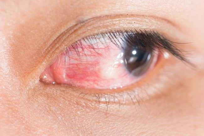 Pengobatan Tradisional Penyakit Tumor Mata