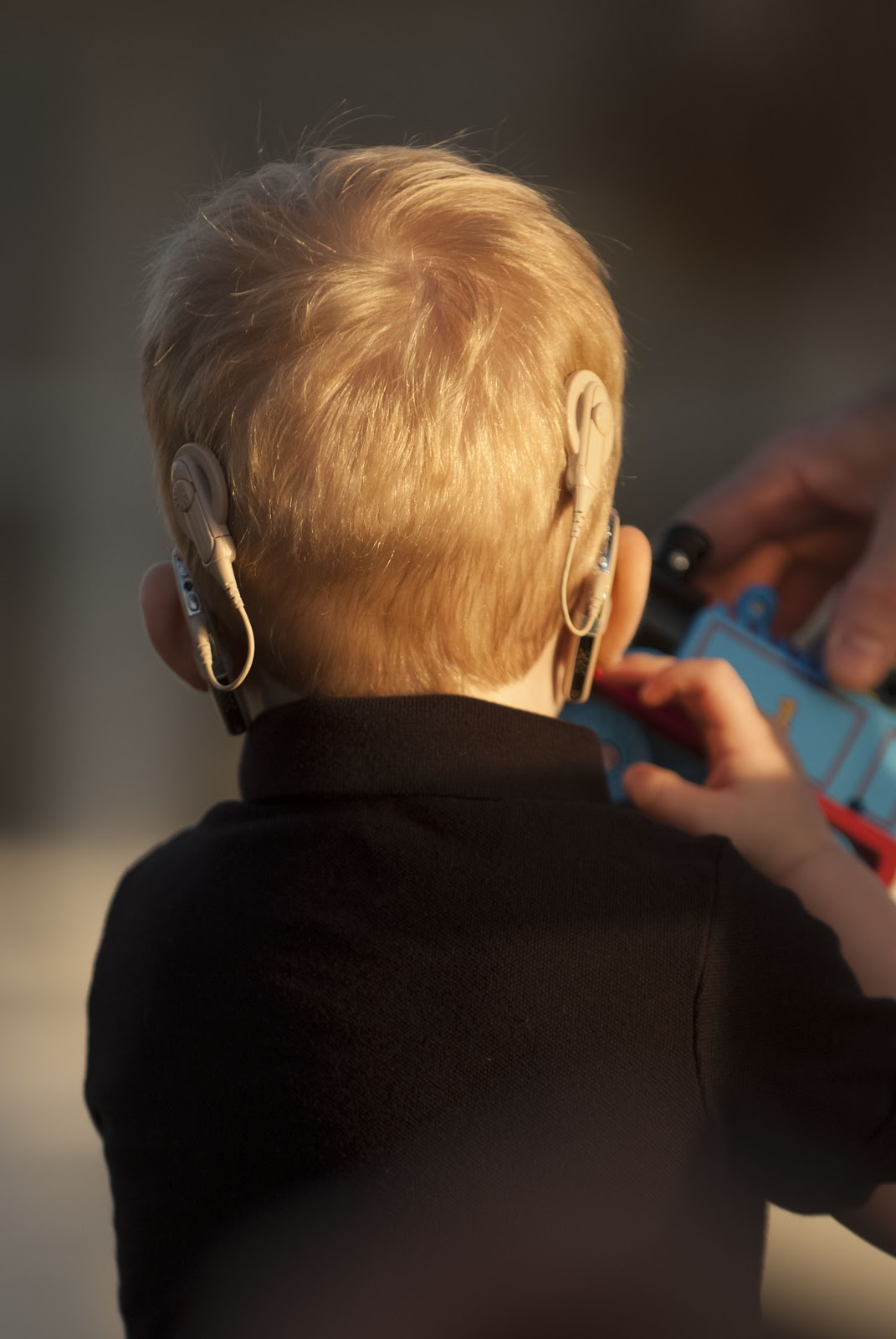 Hearing Aid Cochlear Impants Are Two Better Than One