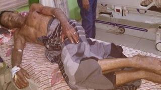 Seorang Pemuda di Aceh Utara Tusuk Ayah dan Abang Kandungnya Pakai Pecahan Botol