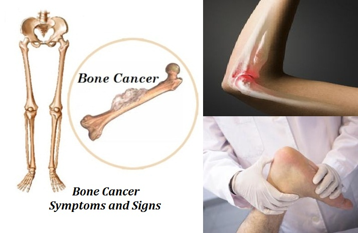 Bone Cancer Symptoms Medicine Cure