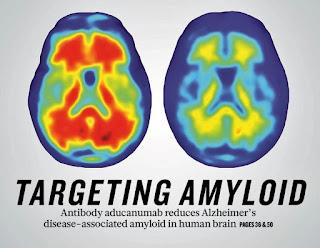 Pareri AducaNumab nou medicament pentru Alzheimer