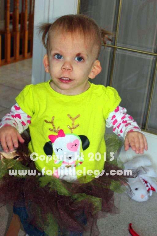 turner syndrome breastfeeding