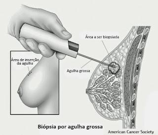 Exame de biopsia na mama