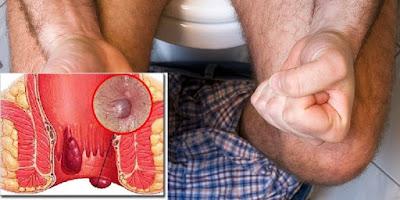 Foto Mencari Obat Pencegahan Hemoroid Intenal Dan Ekstenal Paling Tepat