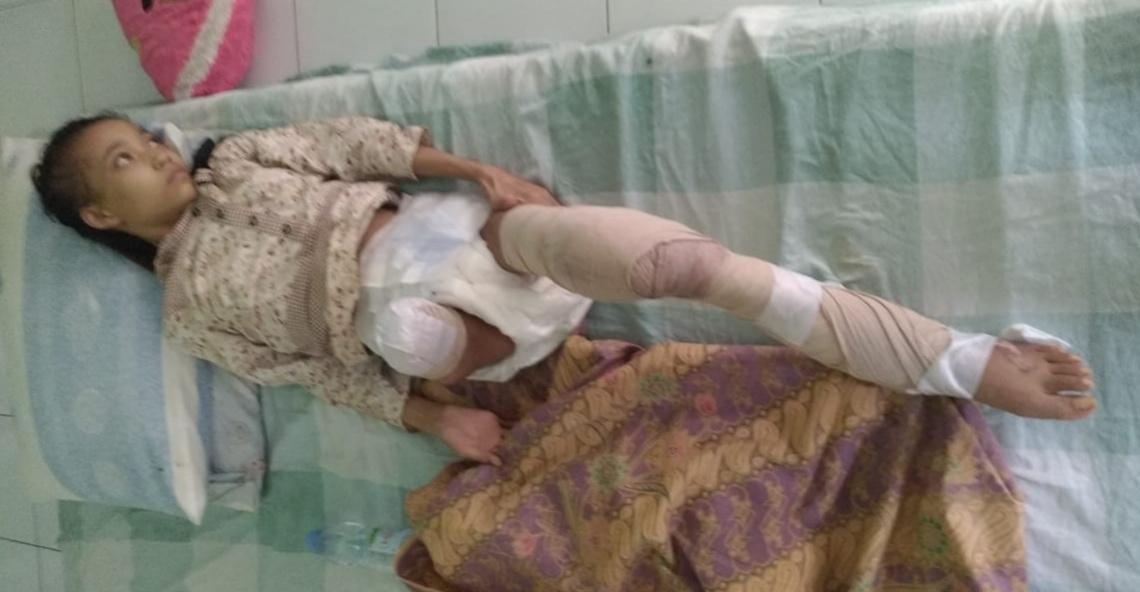 Penderita Kangker Tulang Di Desa Gintung Harapkan Bantuan