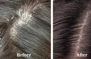 2 Little Known Home Remedies For Dandruff