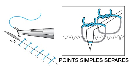 point simple séparé suture fil infimier pansement