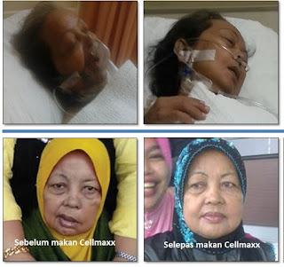 Testimoni CellMaxx, Kesaksian cellmaxx, cellmaxx untuk stroke, cellmaxx testimoni stroke