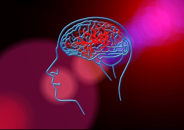 Stroke - Pengertian, Gejala, dan Diagnosis