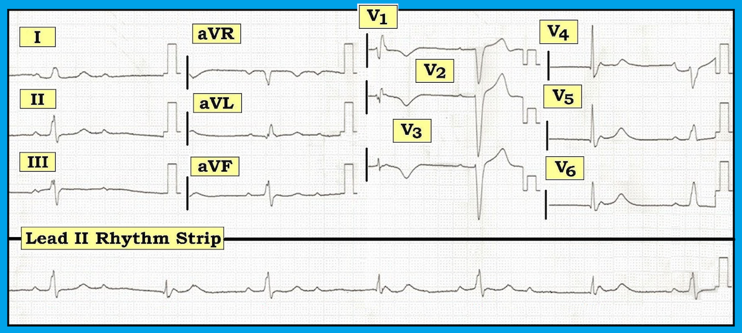 Ecg Interpretation Blog 144 Bradycardia Av Block Diagram Figure 1 12 Lead With Long Ii Rhythm Strip Obtained From A 58 Year Old Man Chest Pain And Fatigue Note Enlarge By Clicking On Figures