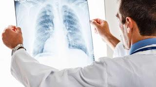 Pencegahan Mesothelioma - Cara Mencegah Kanker Asbestos