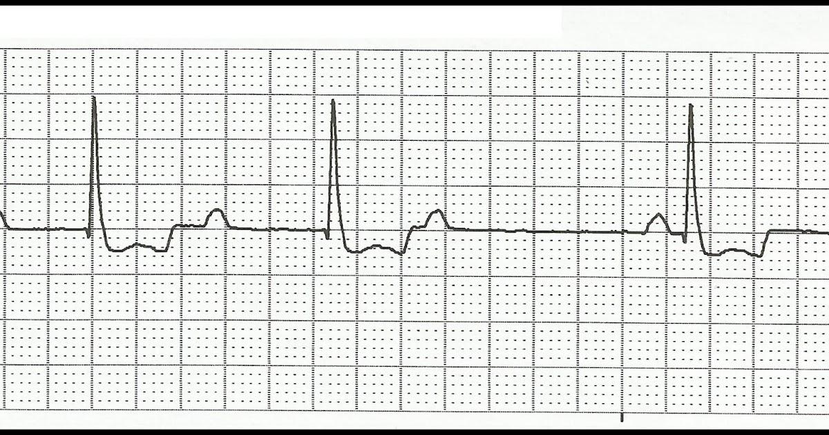 Float Nurse: EKG Rhythm Strip Quiz 117