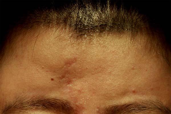 技術不佳的額頭脂肪移植導致不均勻分布與不良的曲線