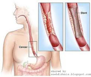 Kanker Ganas