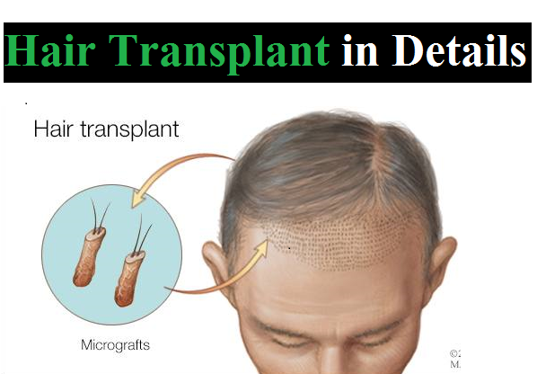Details of Hair Transplant for Men 2018-19,what is the hair transplant,history of hair transplants.