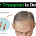 Details of Hair Transplant for Men 2019-20